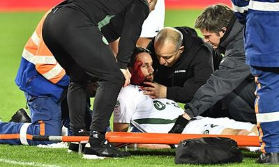 Ligue 1: Subotic suffers horror injury after collision